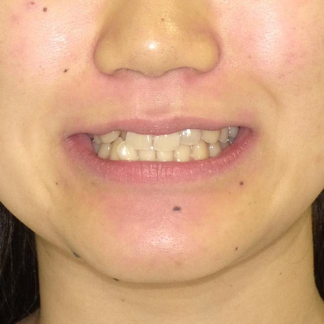 歯の凸凹(叢生)と八重歯の非抜歯での矯正治療例術前写真願貌