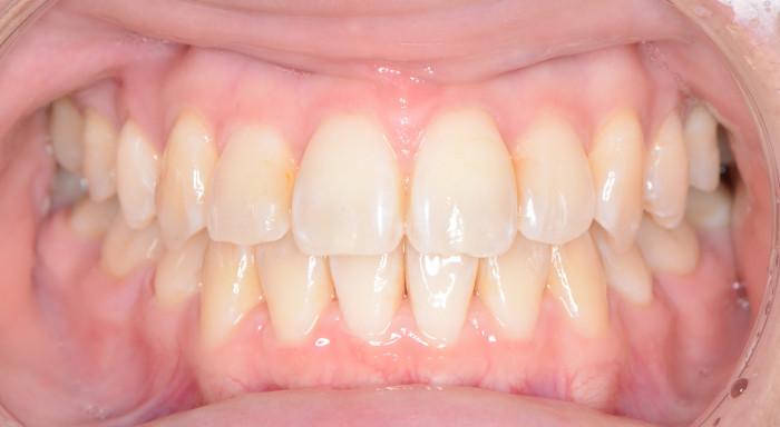 歯の凸凹と八重歯の矯正治療術後の口腔内写真