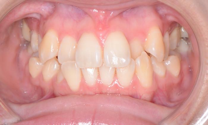 歯の凸凹と八重歯の矯正治療術前の口腔内写真