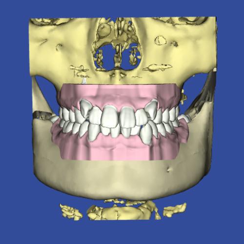 3Dシステムによるヴァーチャルペイシェントの顎画像
