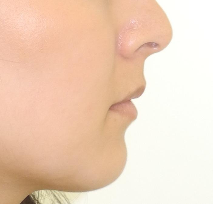 口元突出の矯正治療例、術後の横顔写真