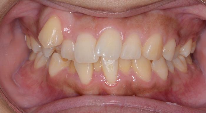 重度の八重歯とガタガタ歯
