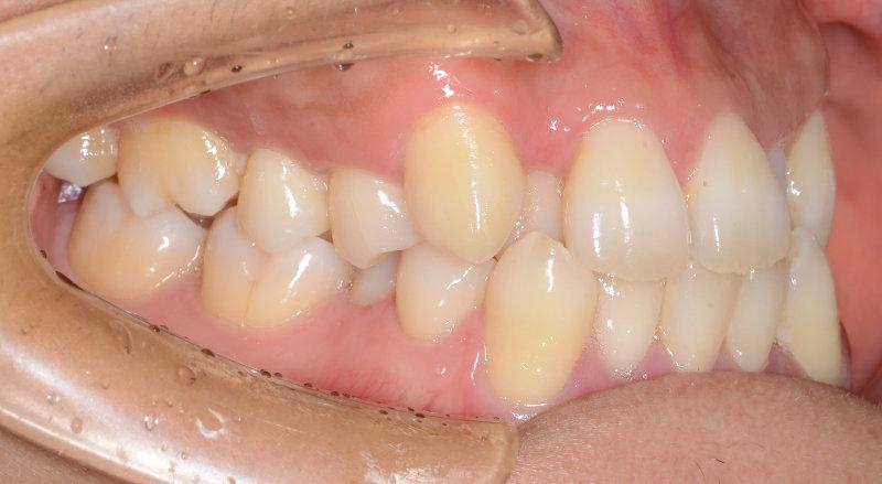 重度の叢生(八重歯、狭窄歯列、反対咬合)の治療前の写真1