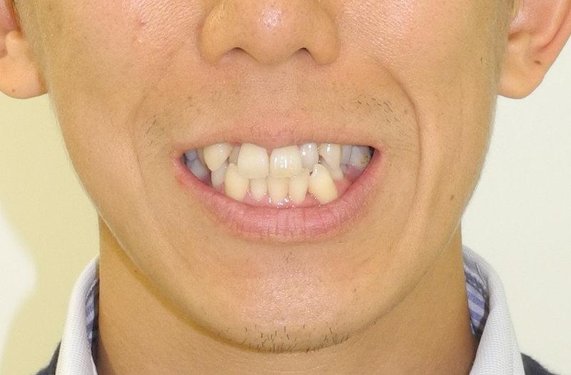 重度の叢生(八重歯、狭窄歯列、反対咬合)の治療前の写真3