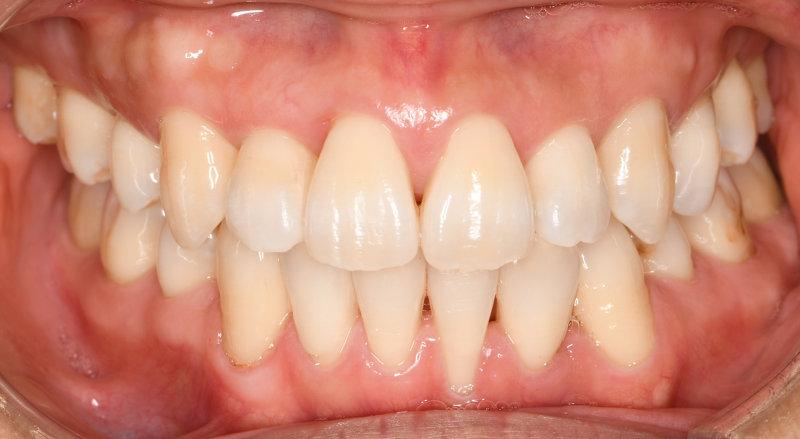 重度の叢生(八重歯、狭窄歯列、反対咬合)の治療後の写真1