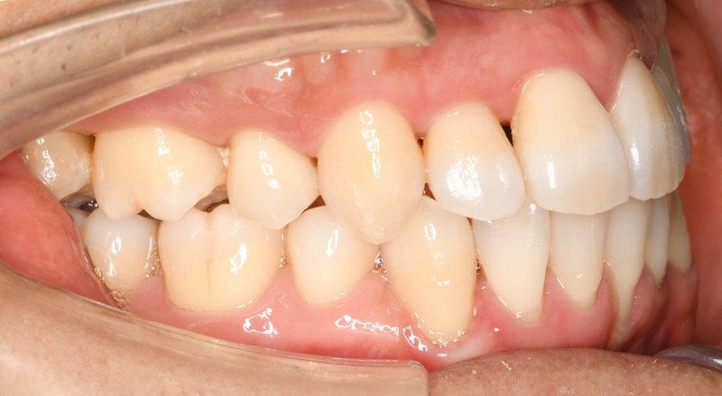 重度の叢生(八重歯、狭窄歯列、反対咬合)の治療後の写真2
