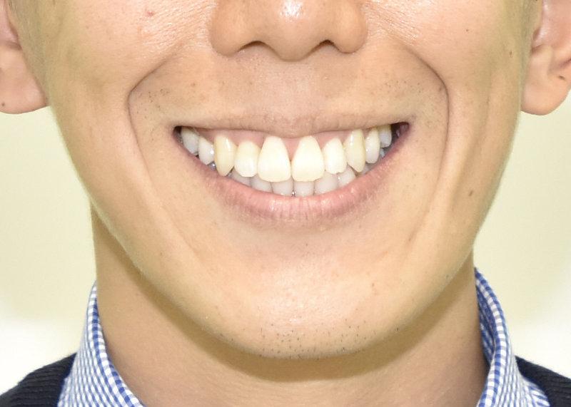 重度の叢生(八重歯、狭窄歯列、反対咬合)の治療後の写真3