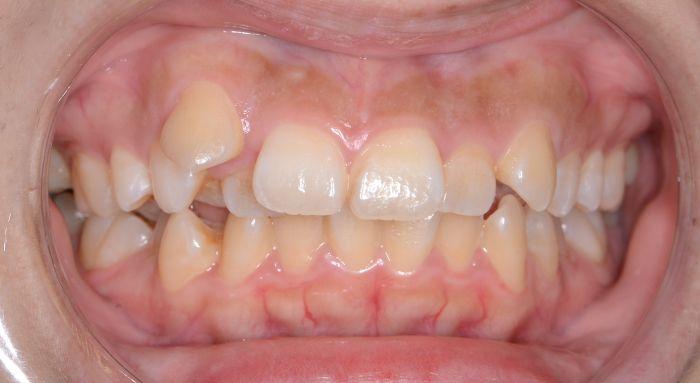 重度の歯の出っ歯と凸凹(叢生)、八重歯の治療例の治療前の正面の写真