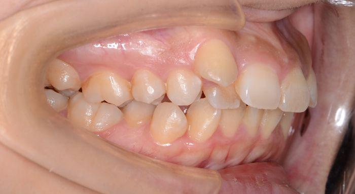 重度の歯の出っ歯と凸凹(叢生)、八重歯の治療例の治療前の横からの写真