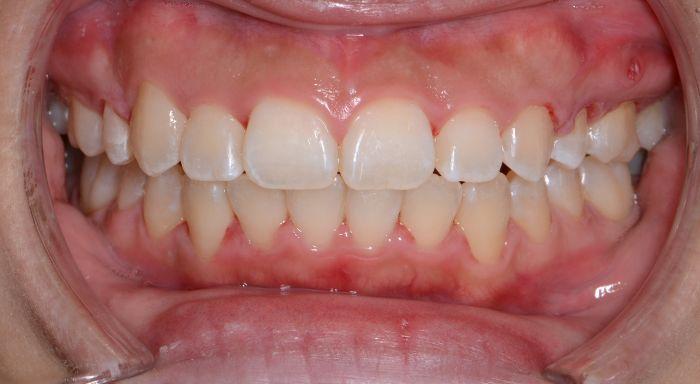 重度の歯の出っ歯と凸凹(叢生)、八重歯の治療例の治療後の正面の写真
