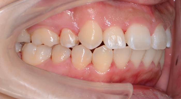 重度の歯の出っ歯と凸凹(叢生)、八重歯の治療例の治療後の横からの写真