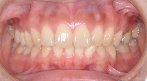 過蓋咬合(deep bite)矯正治療前の正面からの写真