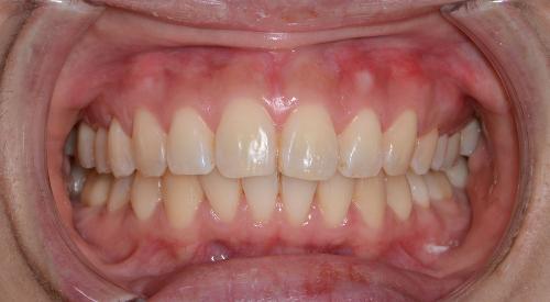 過蓋咬合(deep bite)矯正治療後の正面からの写真