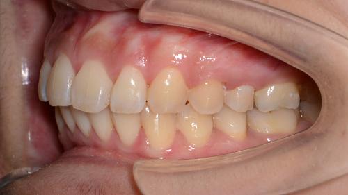 過蓋咬合(deep bite)矯正治療後の左側の写真