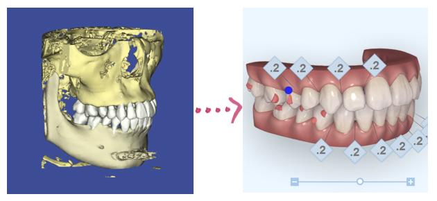 デジタル矯正システムによる治療計画 マウスピース矯正 マウスピース矯正装置による矯正治療